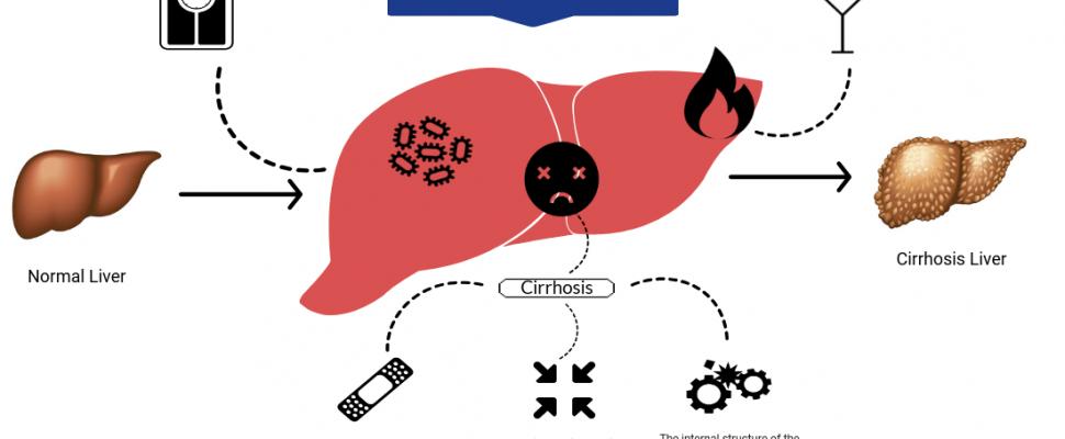 Effetcs alcohol liver